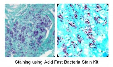 Acid Fast Bacteria Staining Kit