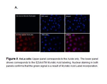 EZClick™ Myristoylated Protein Assay Kit, Red Fluorescence