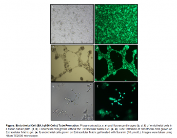 Angiogenesis (Tube Formation) Assay