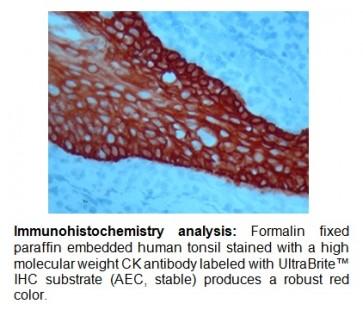 UltraBrite™ Red IHC chromogen (HRP)