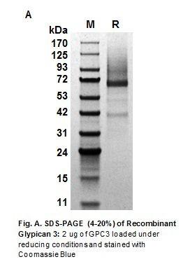 Human CellExp™ Glypican 3 / GPC3, Human recombinant