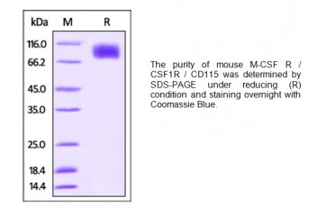 Human CellExp™ CSF1R/CD115, mouse recombinant, Fc Tag