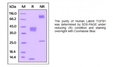 Human CellExp™ Latent TGF-beta 1 / TGFB1, human recombinant