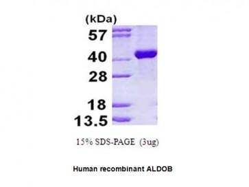 ALDOB, human recombinant