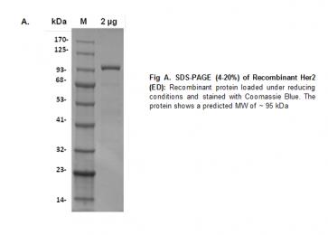 Human CellExp™ Her2/ErbB2, Extracellular Domain (ED), Human Recombinant