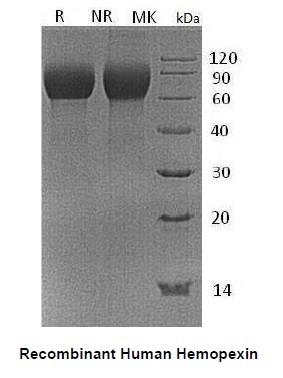 Human CellExp™ Hemopexin, Human Recombinant