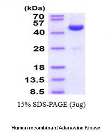 Adenosine kinase, Human Recombinant