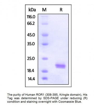 Human CellExp™ ROR1 (308-395, Kringle domain), Human Recombinant