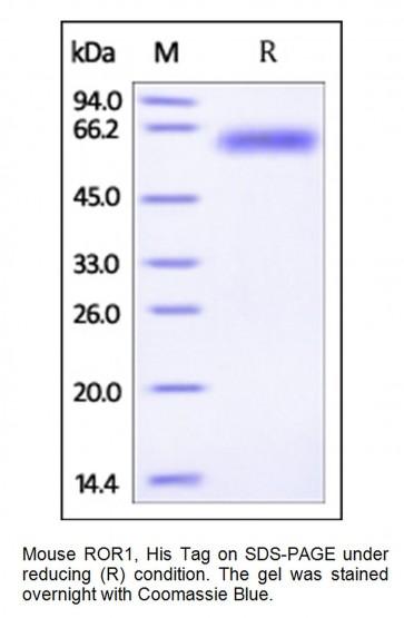 Human CellExp™ ROR1, Mouse Recombinant