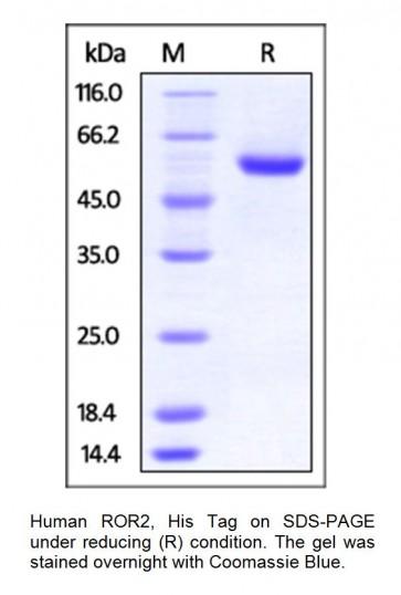 Human CellExp™ ROR2, Human Recombinant