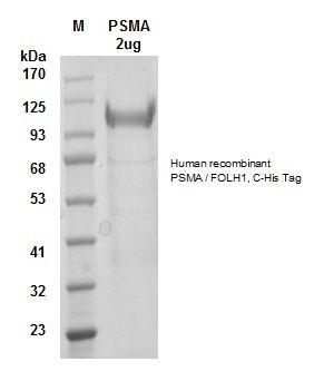 Human CellExp™ PSMA / FOLH1, C-His Tag, human recombinant