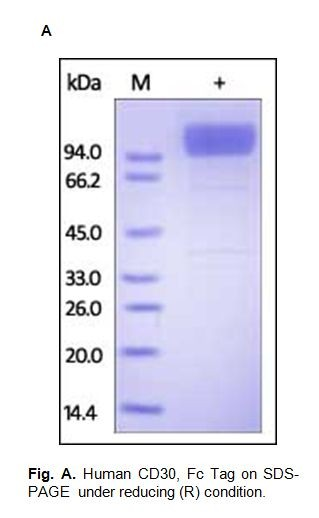 Human CellExp™ CD30 /TNFRSF8, Fc Tag, Human Recombinant