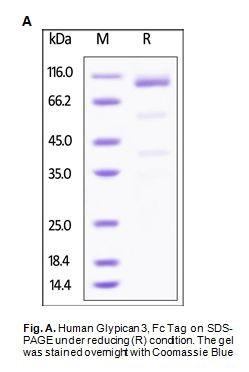 Human CellExp™ Glypican 3 / GPC3, Fc Tag, Human Recombinant