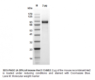 Human CellExp™ Her2 / ErbB2, Mouse Recombinant
