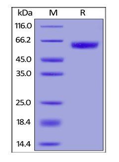 Human CellExp™ GM-CSF R alpha, Human Recombinant