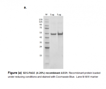 Argininosuccinate Synthetase (ASS1), E. coli, Recombinant