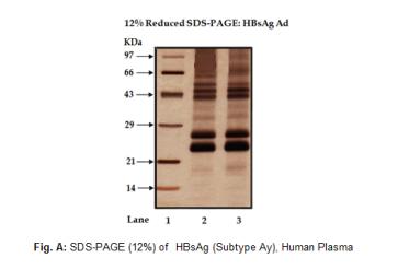 HBsAg (Subtype Ay), Human Plasma