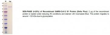 Human CellExp™ SARS-CoV-2 S1 Protein (Delta Plus), Recombinant