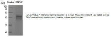 Human CellExp™ Interferon Gamma Receptor 1 (His Tag), Mouse Recombinant