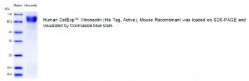 Human CellExp™ Vitronectin (His Tag, Active), Mouse Recombinant