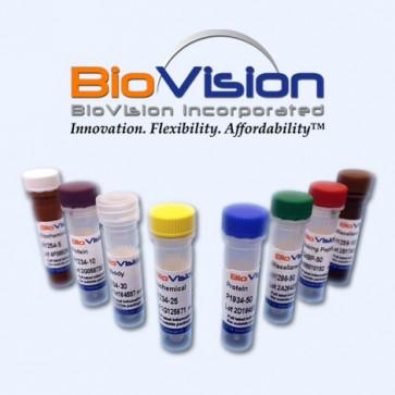 Human CellExp™ Lipocalin-2 / LCN2, rat recombinant