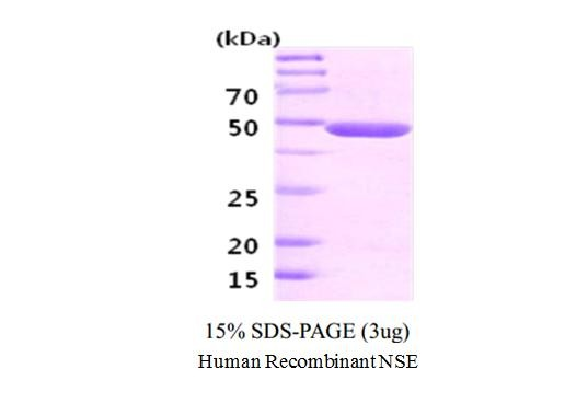 Human Recombinant Neuron-Specific Enolase (NSE)