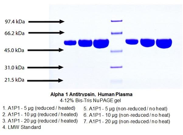 Alpha 1 Antitrypsin, Human Plasma   7294   BioVision, Inc